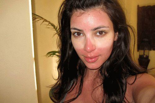 Как спасти кожу, когда сгорели на солнце